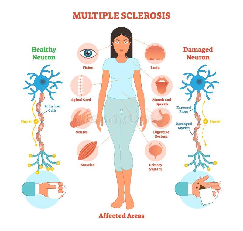 Diagrama anatômico da ilustração do vetor da esclerose múltipla, esquema médico ilustração royalty free