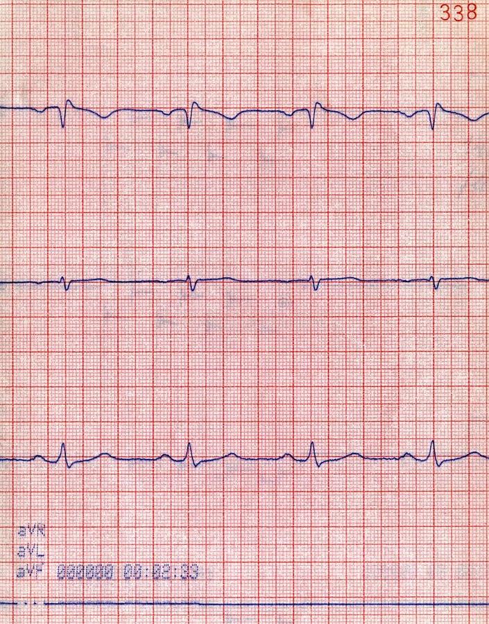 Diagrama cardiio del primer, prueba pacient del corazón, fotos de archivo