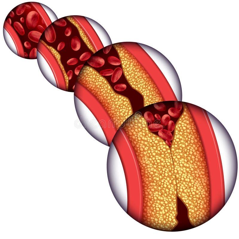 Diagrama da doença da artéria ilustração stock