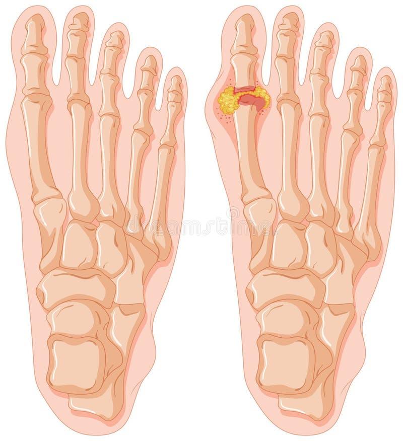 Diagrama da gota no dedo do pé humano ilustração royalty free