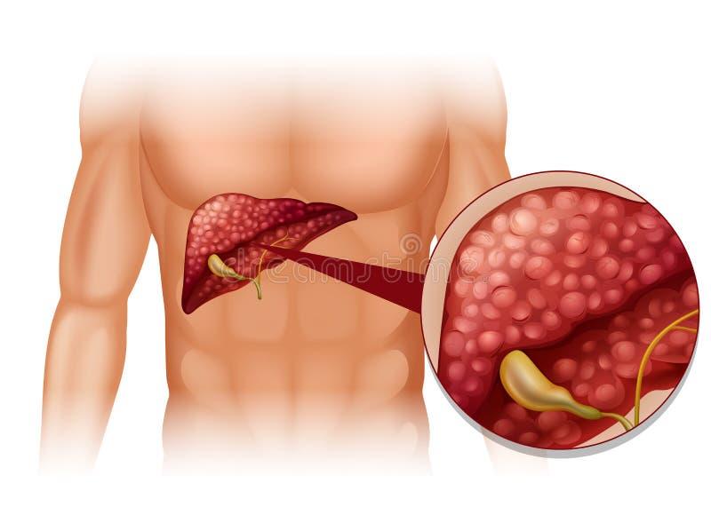 Diagrama de la esclerosis en ser humano stock de ilustración