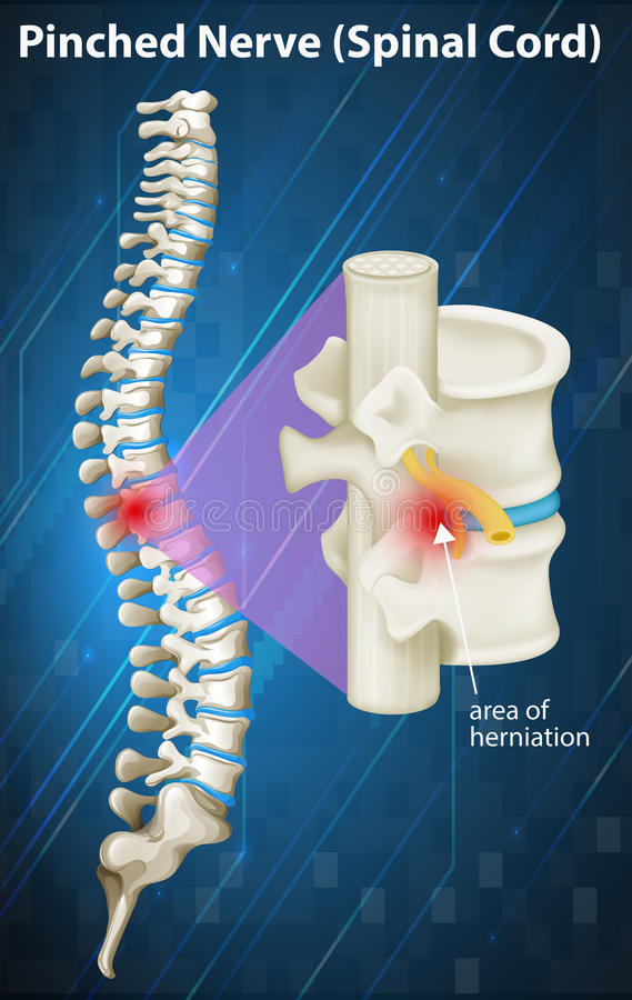 Diagrama do nervo comprimido na medula espinal ilustração do vetor