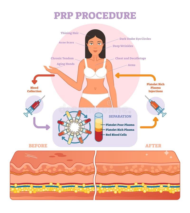 Diagrama gráfico del ejemplo del vector del procedimiento de PRP, esquema del procedimiento de la cosmetología stock de ilustración