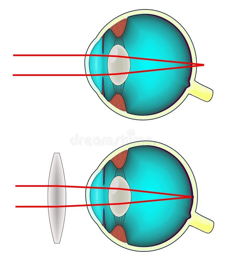 Diagrama Longsighted Del Ojo Humano Ilustración del Vector ...