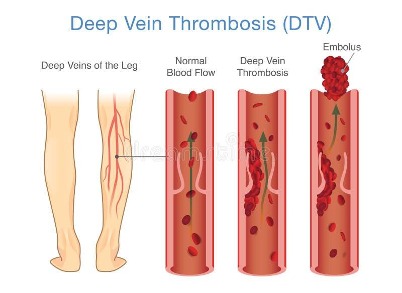 Diagrama médico de la trombosis profunda de la vena en el área de la pierna ilustración del vector