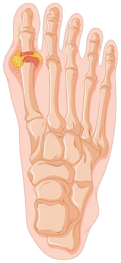 Diagrama que mostra o dedo do pé da gota ilustração stock