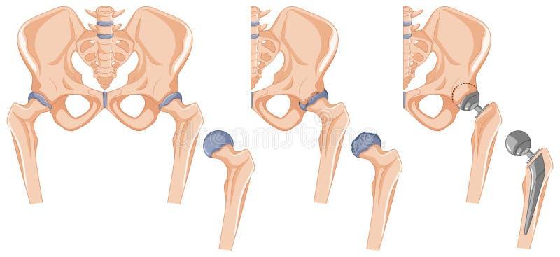 Diagrama que muestra el tratamiento del hueso de la cadera stock de ilustración