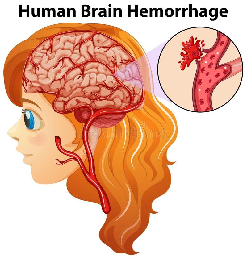 Diagrama que muestra hemorragia de cerebro humano ilustración del vector