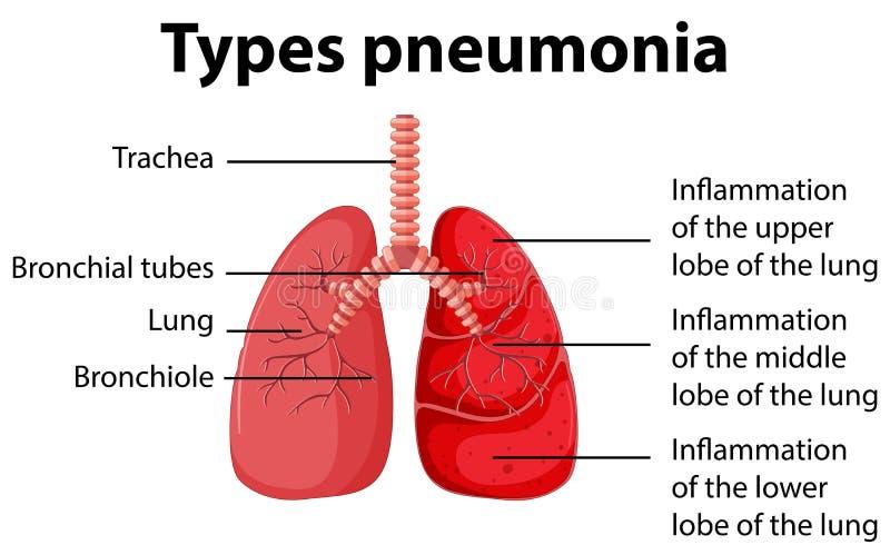 Diagrama que muestra los tipos pulmonía ilustración del vector