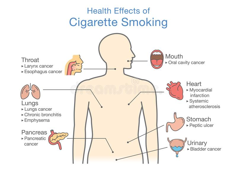 Diagrama sobre el efecto sobre la salud del tabaquismo stock de ilustración