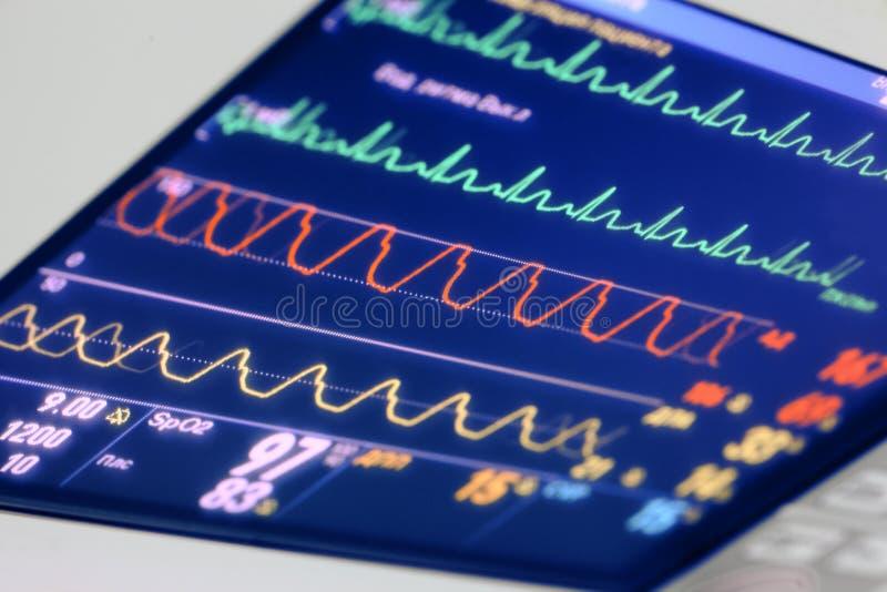 Diagramas (curvas) que reflejan el estado del paciente en el coche imagen de archivo libre de regalías