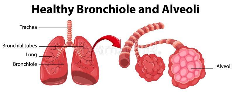 Diagramm, das gesunde Bronchiole und Alveolen zeigt lizenzfreie abbildung