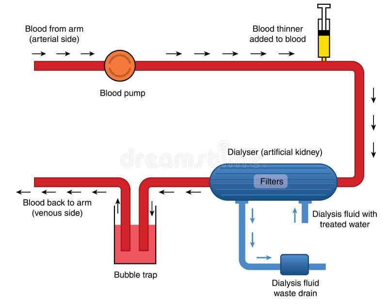 Diagramm des Dialysators stock abbildung