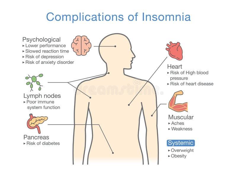Diagramm von Komplikationen von Schlaflosigkeit lizenzfreie abbildung