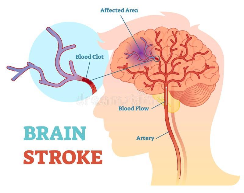 Diagramma anatomico dell'illustrazione di vettore di Brain Stroke, schema illustrazione vettoriale