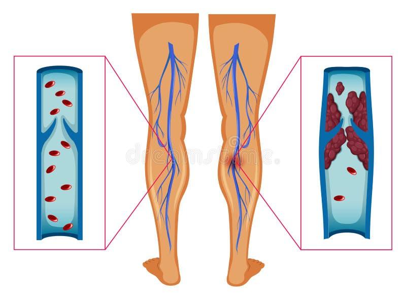 Diagramma che mostra coagulo di sangue in gambe umane illustrazione vettoriale