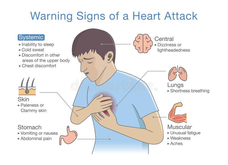 Diagramma circa i segnali di pericolo di un attacco di cuore illustrazione di stock