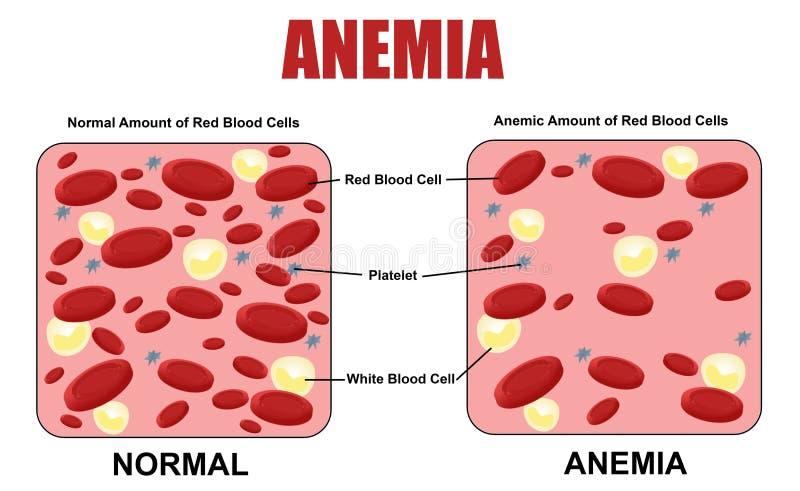 Diagramma di anemia illustrazione vettoriale