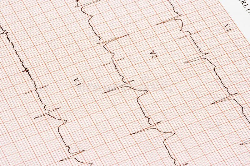 Grafico di elettrocardiogramma immagini stock libere da diritti
