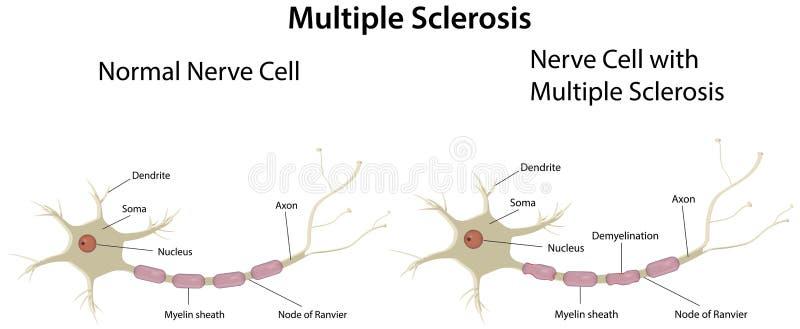 Diagramma di sclerosi a placche illustrazione vettoriale