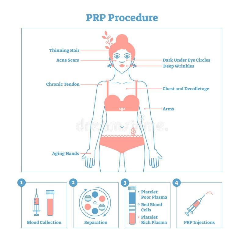 Diagramma grafico dell'illustrazione di vettore di procedura di PRP, schema di procedura di cosmetologia Bellezza e skincare dell illustrazione di stock