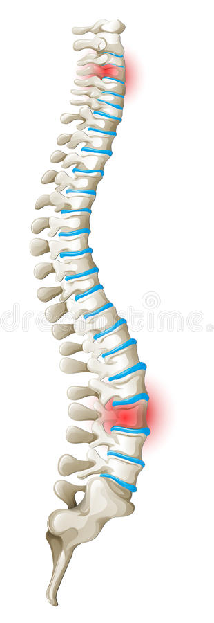 Diagramme de douleurs de dos d'épine illustration de vecteur