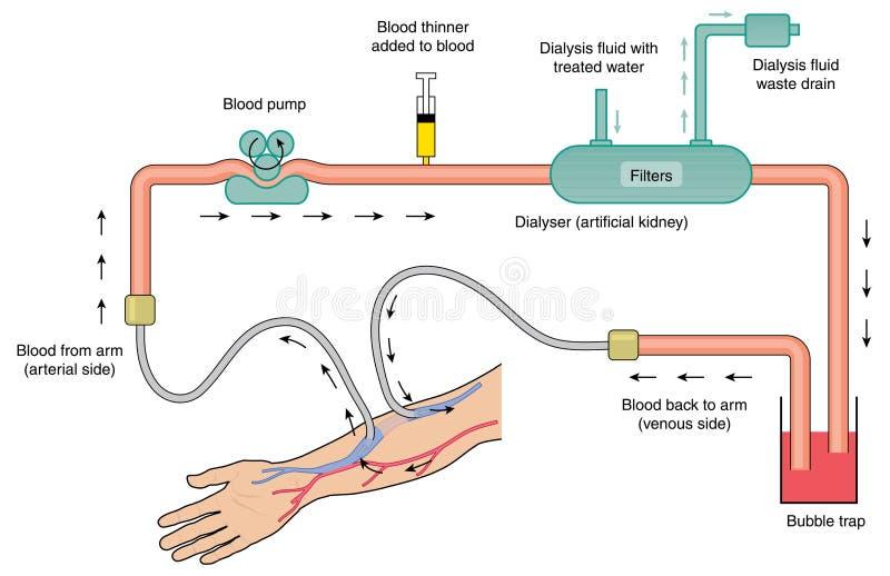 Diagramme de machine de dialyse de rein illustration de vecteur