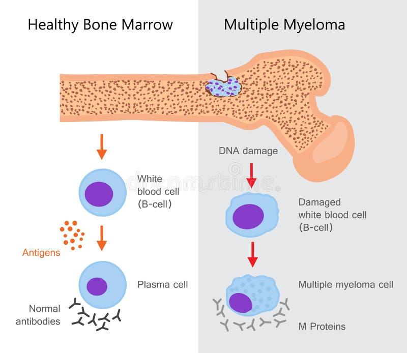 Diagramme de myélome multiple illustration de vecteur