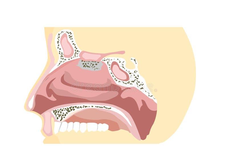 Diagramme de nez illustration stock