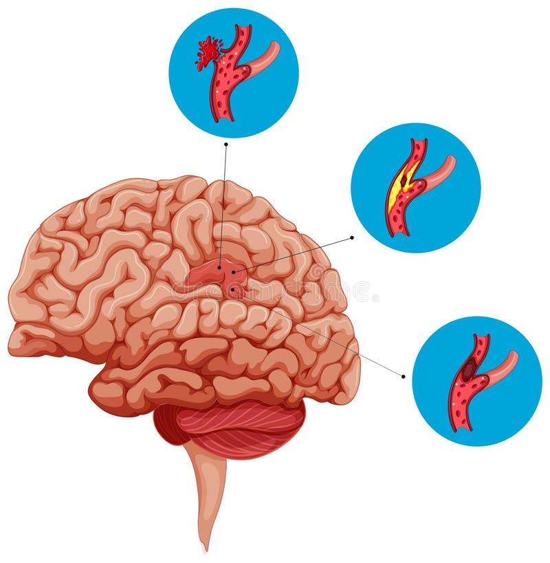 Diagramme montrant des problèmes avec le cerveau illustration de vecteur