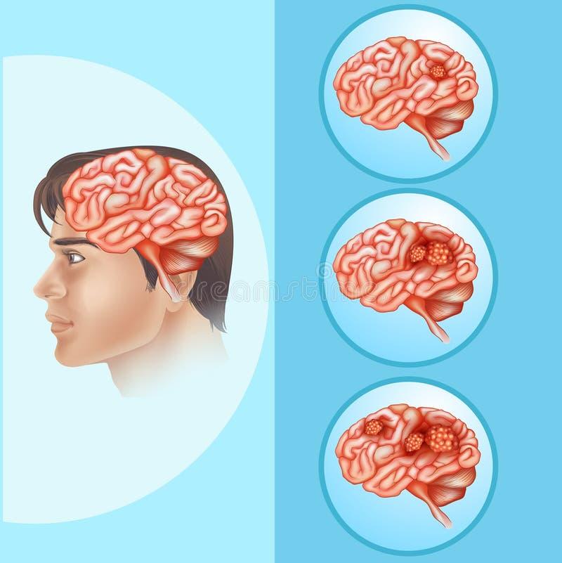 Diagramme montrant le cancer du cerveau dans l'humain illustration stock