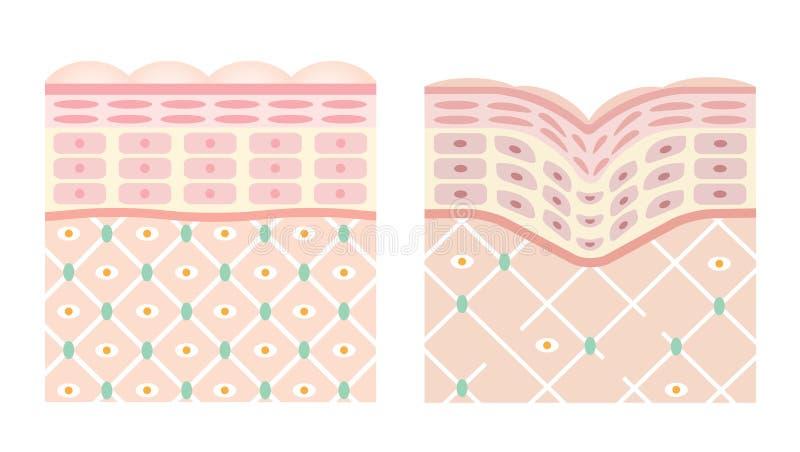 Diagrammen van jonge huid en oude huid stock illustratie