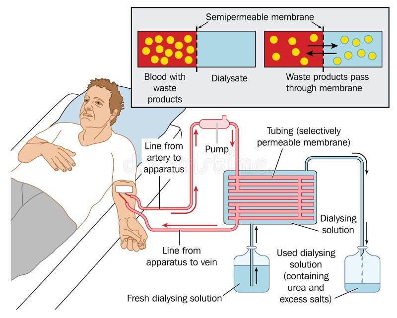 Dialisi renale illustrazione vettoriale