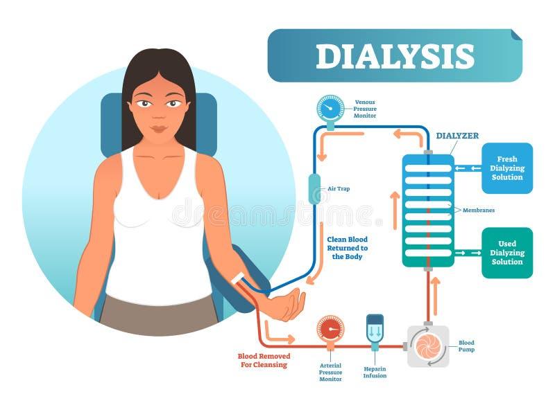 Dializy medycznej procedury systemu wektorowy ilustracyjny diagram Filtrować krew w przypadku cynaderki wadliwego działania ilustracji