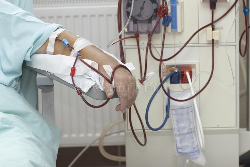 Dialysegesundheitspflege-Medizinniere lizenzfreie stockfotografie