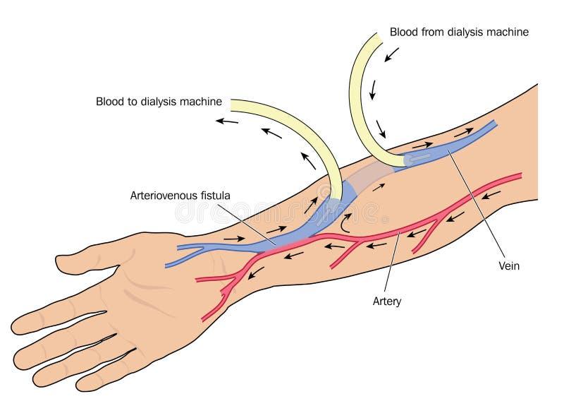 Dialysis Arteriovenous Fistula Stock Vector Illustration Of Blood