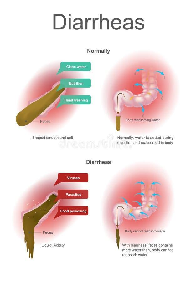 Diarrheas El agua se añade durante la digestión y se reabsorba normalmente en cuerpo Con diarrheas que cuerpo no puede reabsorbar stock de ilustración