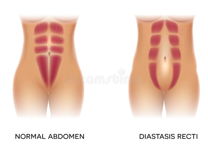 Diastasis recti lizenzfreie abbildung