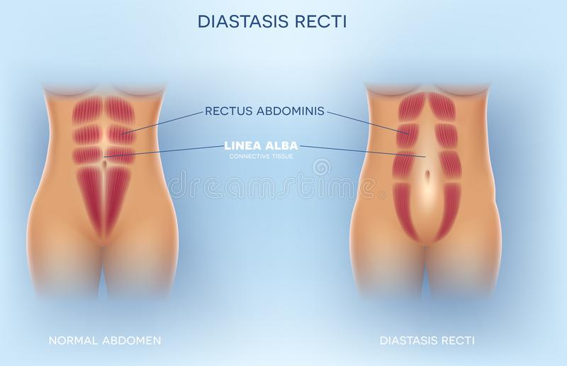 Diastasis recti stock abbildung
