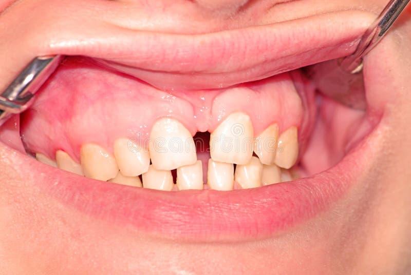 Diastema della mandibola superiore fotografie stock libere da diritti