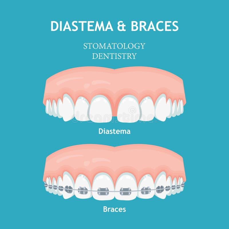 Diastema e cintas Conceito do vetor da odontologia do Stomatology ilustração stock
