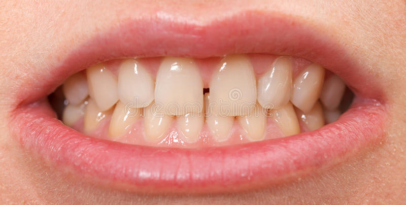 Diastema entre os incisors superiores fotografia de stock royalty free