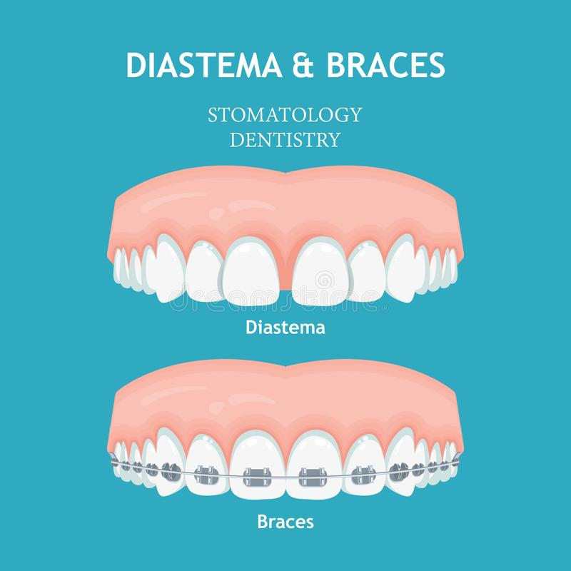 Diastema och hänglsen Begrepp för Stomatologytandläkekonstvektor stock illustrationer