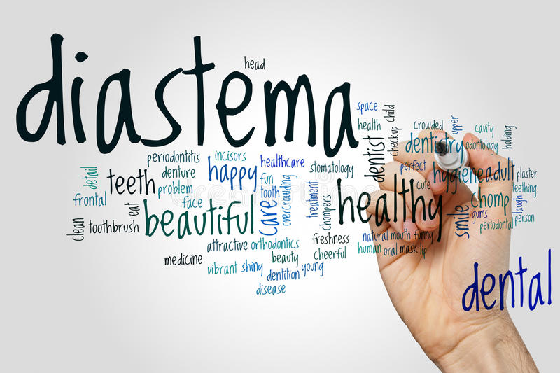 Diastema word cloud. Concept on grey background royalty free stock photography