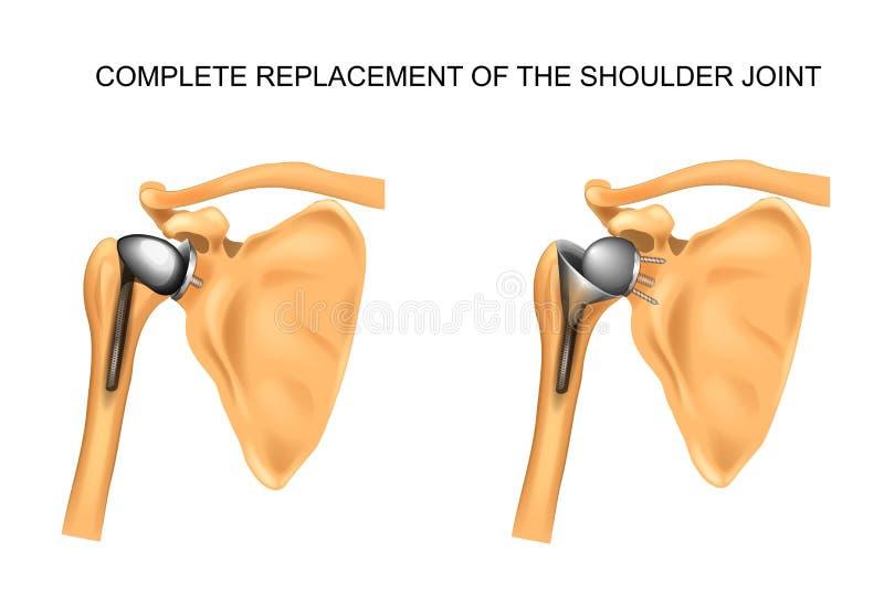 Die Arten der Prothese der Schulter stock abbildung