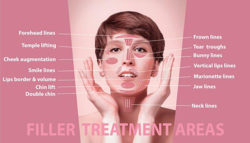 Die Bereiche für cosmetological Einspritzungen der Verjüngung stockfoto
