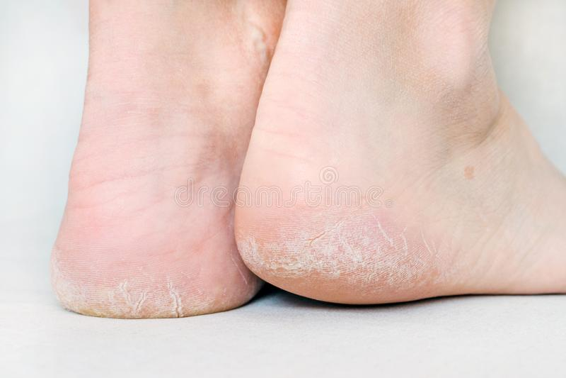 Die Füße der Frau mit trockenen Fersen, gebrochene Haut lizenzfreie stockfotos