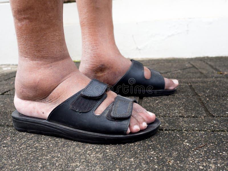 Die Füße des Mannes mit Diabetes, stumpf und geschwollen Wegen der Giftigkeit von Diabetes lizenzfreie stockfotografie