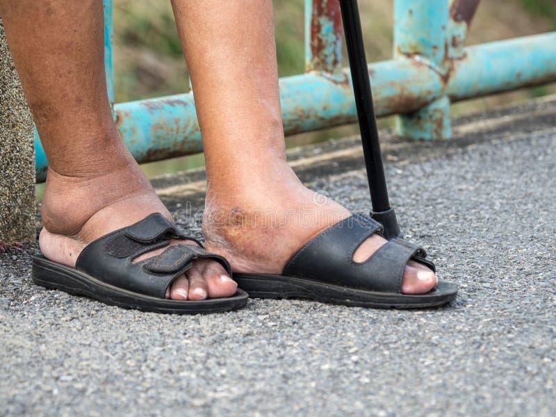 Die Füße des Mannes mit Diabetes, stumpf und geschwollen Wegen der Giftigkeit von Diabetes Fußschwellen verursacht durch Trinkwas stockbild