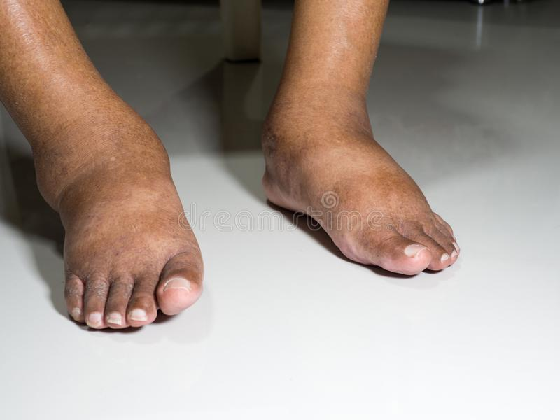 Die Füße Leute mit Diabetes, stumpf und geschwollen Wegen der Giftigkeit von Diabetes gesetzt auf einen weißen Hintergrund stockbild